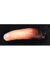 Cut Off Finger