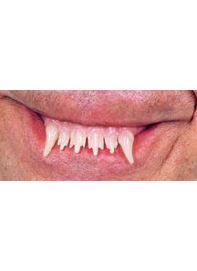 Teeth Glow Werewolf Witch
